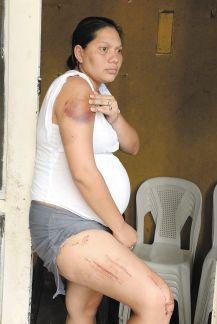 """Yelba Nohemi Ramirez, madre de los pequeños muertos en emboscada nocturns de  Las jaguitas, muestra sus golpes de culata y raspones al haber sido arrastrada por los """"Tapir"""" de la Policia  . Foto Uriel/LAPRENSA"""